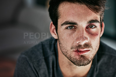 Buy stock photo Cropped portrait of a beaten and bruised young man looking down