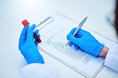 Buy stock photo Cropped shot of a scientist recording the results of a blood test